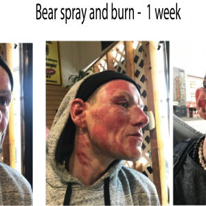 Bearspayand burn